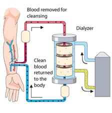 Dialysis working diag